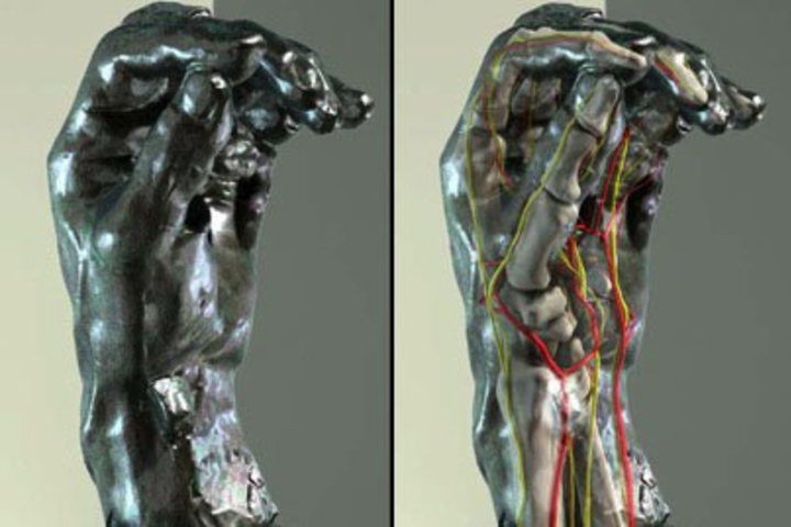 Side-by-side images of Rodin hand sculpture and the same hand sculpture with inner anatomy.